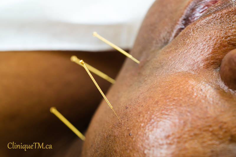 clinique acupuncture longueuil