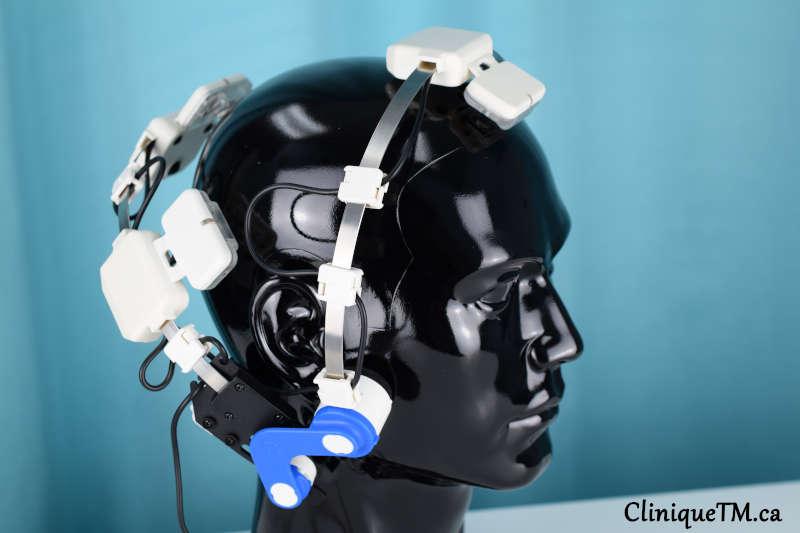 alternative treatment for parkinson's disease transcranial photobiomodulation