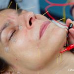 Lifting acupunctural